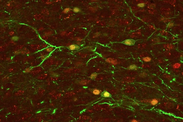 This image shows neurons in the nucleus accumbens.