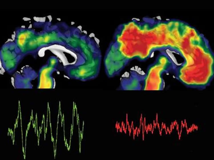 Beta brain waves study