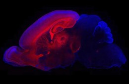 This image shows the cerebral cortex.