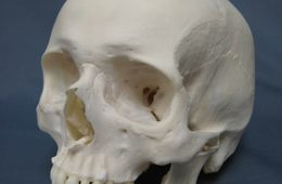 This image is a human skull.