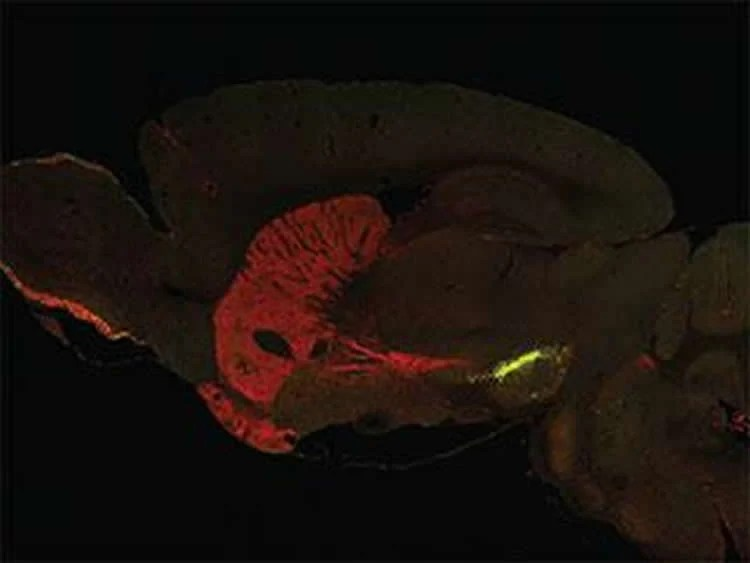 This image shows SNpc neurons in a mouse brain.