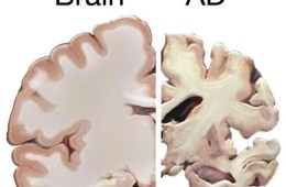 This shows a healthy brain slice and a slice from a brain with Alzheimer's disease.