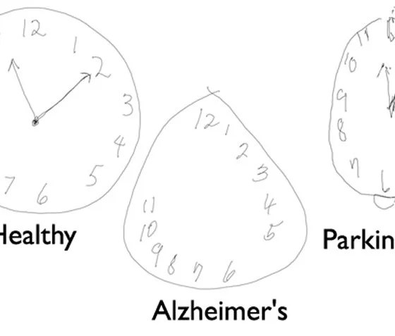 Detecting Alzheimer's Disease by Drawing a Clock Face with