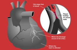 This is a diagram showing how a heart attack occurs.