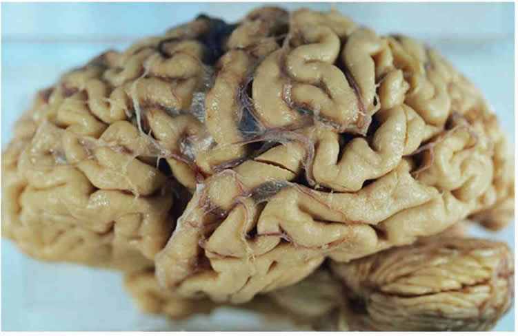 This image shows the brain of an alzheimer's patient.