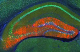 This is a mouse hippocampus.