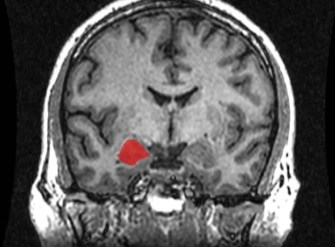 Image shows an MRI brain scan with the amygdala highlighted.