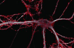 Image of a hippocampal neuron.