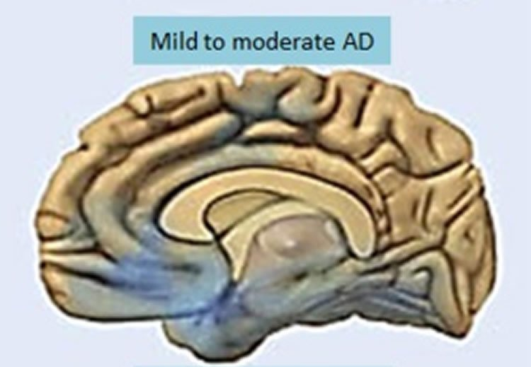 From Mild Cognitive Impairment to Alzheimer's: Typical Patterns in Progression Towards Dementia Identified