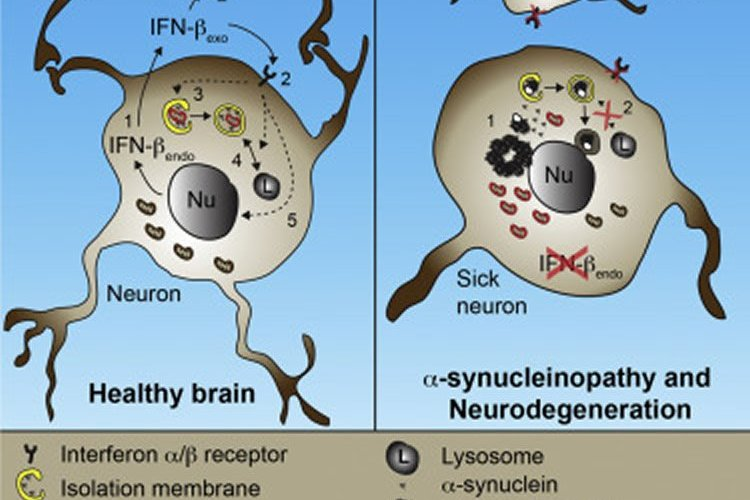 Diagram of a healthy neuron and one from a Parkinson's patient.