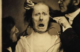 Photo of Guillaume Duchenne de Boulogne manipulating a patient's face.