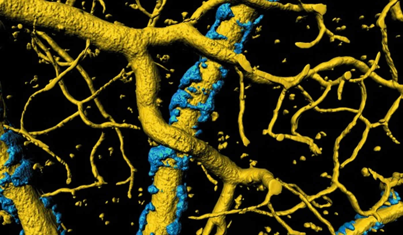 New Understanding of Cause of Alzheimer's Symptoms
