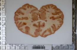 Photo shows a brain slice.