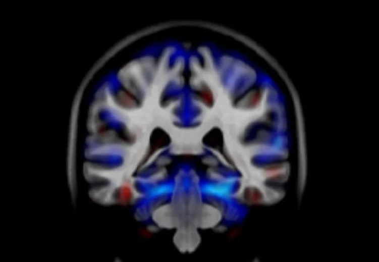 Image shows a brain scan from a person with alcohol dependencies.