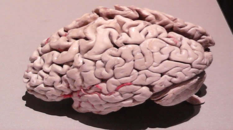 Magnesium Ions May Slow Progression of Alzheimer's Disease
