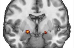 Amygdala is highlighted in this brain scan image.