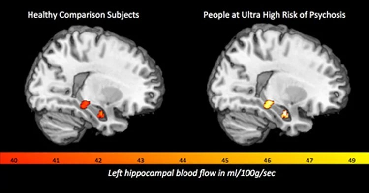 Development of Psychosis Linked to Heightened Blood Flow ...