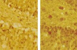 Image shows NMDA receptors.