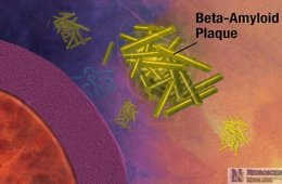 Image shows amyloid beta plaques attacking a cell.