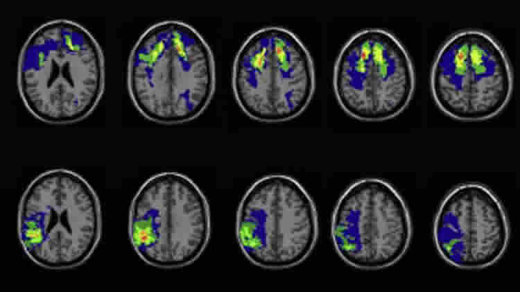 Brain scans taken from this study.