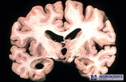 Image of a brain slice from an alzheimer's patient.