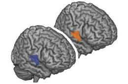 Image shows location of right superior temporal gyrus in the human brain.
