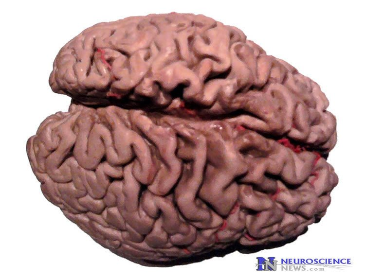 Image of an alzheimer's brain.
