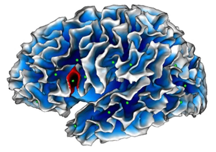 The Boy Whose Brain Could Unlock Autism >> Could Autism Be Hiding In A Fold Of The Brain Neuroscience News