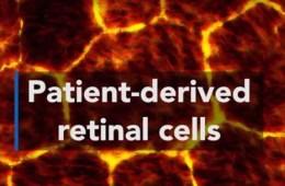 Image shows human retinal cells.