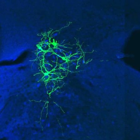 Image shows neurons in the lateral vestibular nucleus.