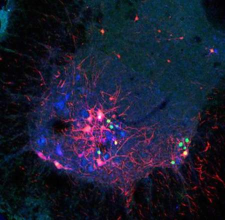 Image shows star motor neurons.