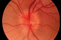 Image shows optic neuritis.
