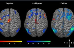 Image shows brain scans with different areas highlighted. The caption best describes the image.