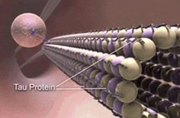 Image shows tau protein.