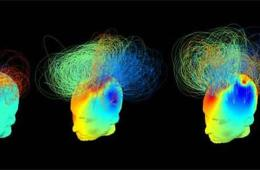Image shows 3 head models with lines representing brain signatures.