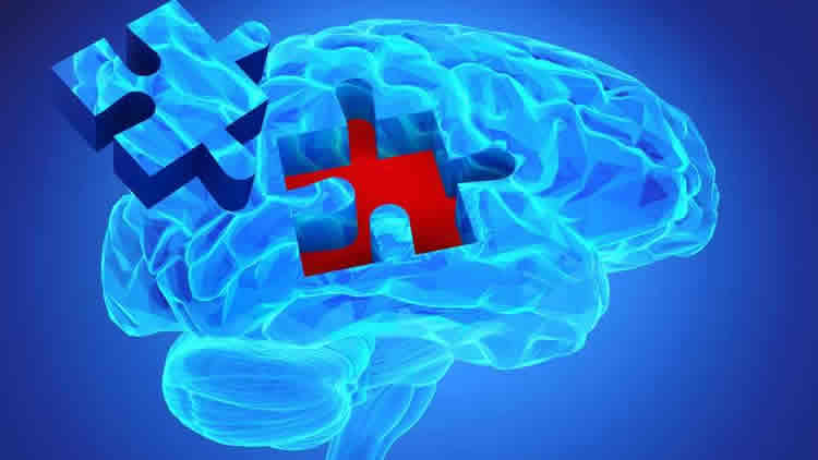Image shows a blue brain with a jigsaw piece.