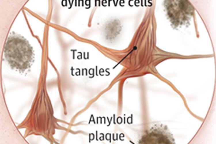 Image shows neurons with tau tangles.