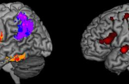 Image shows brain scans. The caption best describes the image.