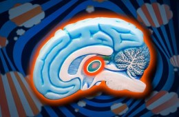 Illustration of the brain with the TRN highlighten in orange.