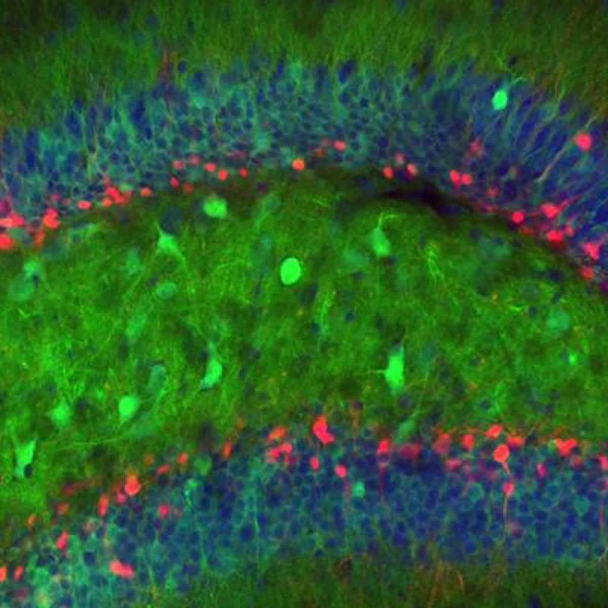 Image shows granuel cells in a mouse dentate gyrus.