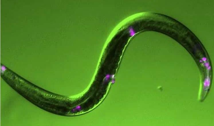 Image shows a C.elegans.