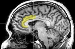 Image shows an MRI scan with the ACC highlighted yellow.