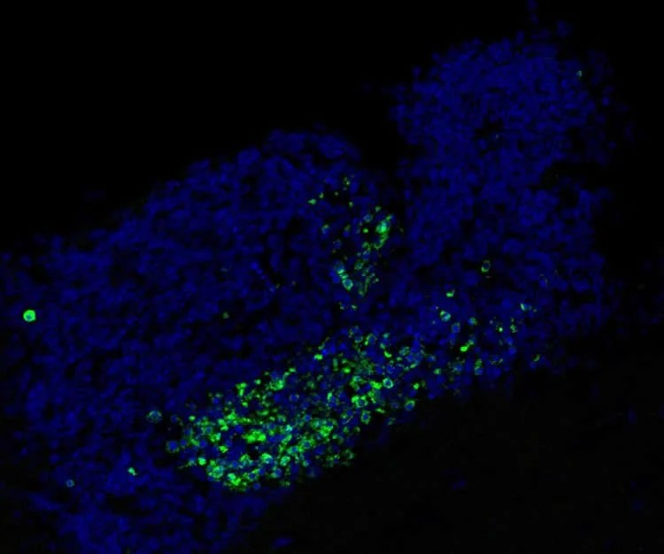 Image shows dead cells in the SVZ of a mouse brain.