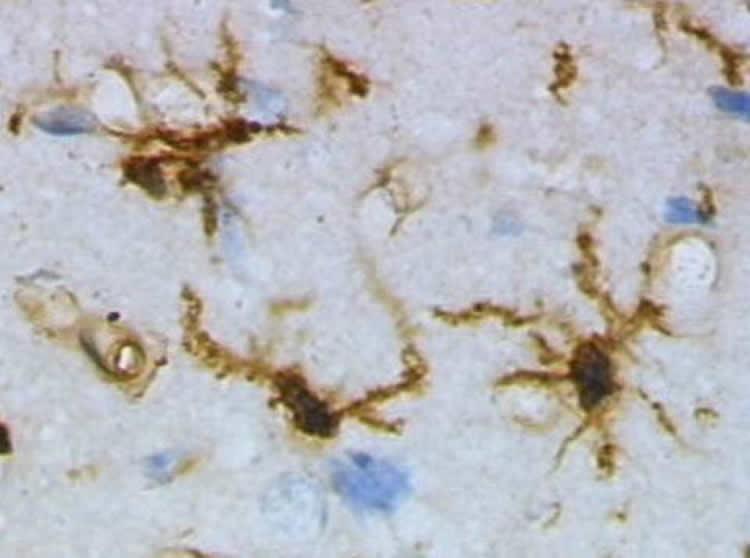 Image shows microglia.