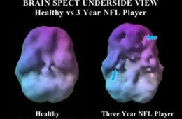 Image shows brain scans from the study. The caption best describes the image.