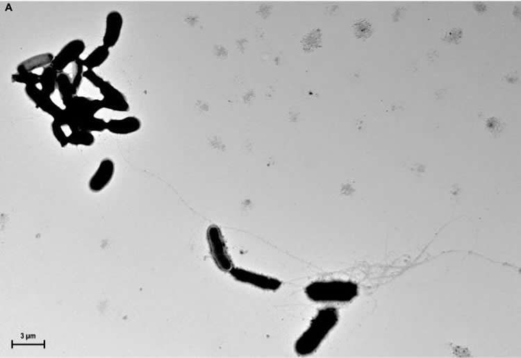 Image shows amyloid beta.