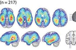 Image shows glioblastoma density maps.
