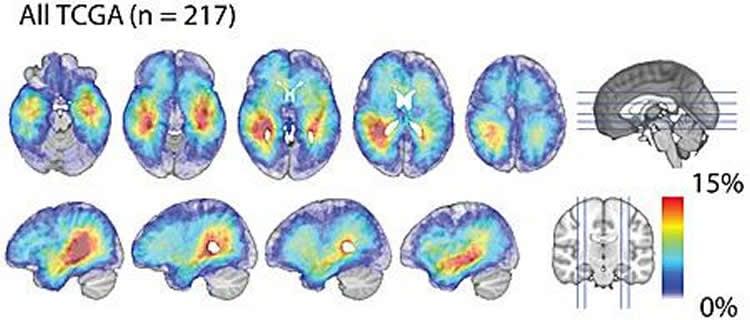 Image shows glioblastoma density maps.