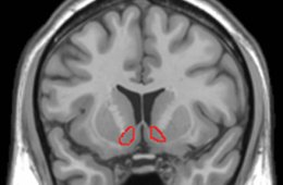 Image shows the location of the NAc in the human brain.
