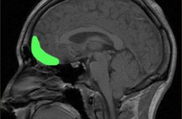 Image shows the location of the orbitofrontal cortex.